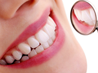 Dental insurance covers the costs of check ups and treatment
